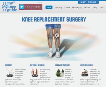 My Knee Guide
